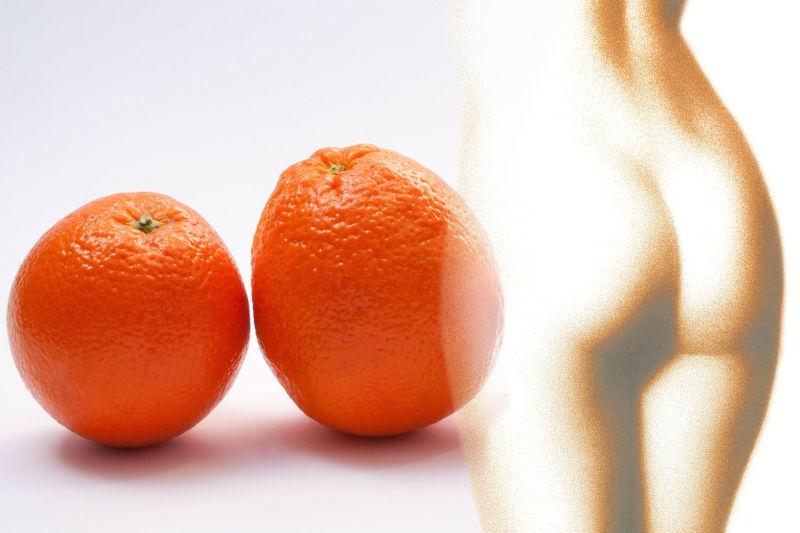 Cellulite, come curarla con i rimedi naturali